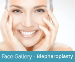 blepharoplasty-before-and-after-image-gallery