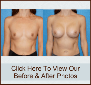 Breast Surgery Patient Photo Sacramento