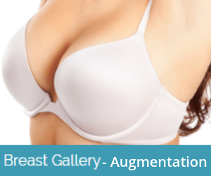 breast-augmentation-before-and-after-image-gallery