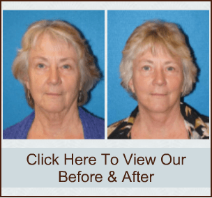 Face Lift Before & After