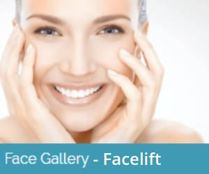 facelift-before-and-after-image-gallery
