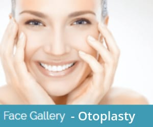 otoplasty-before-and-after-image-gallery