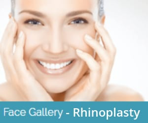 rhinoplasty-before-and-after-image-gallery