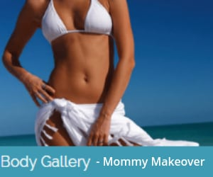 Mommy Makeover Gallery in Sacramento & Granite Bay