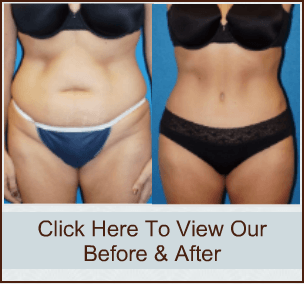 Tummy Tuck in Sacramento & Granite Bay