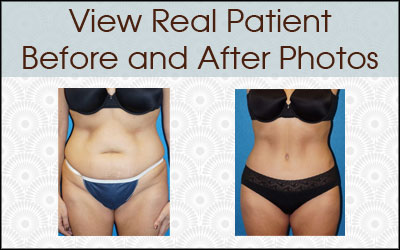 Before After Plastic Surgery Photos in Sacramento & Granite Bay