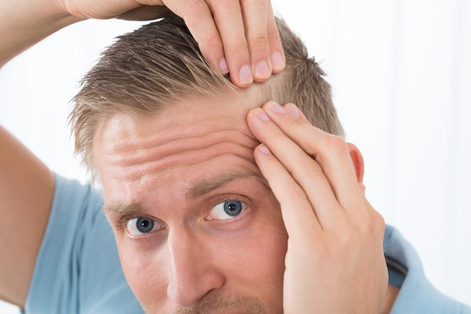NeoGraft Hair Transplant with Dr. Rudy Coscia in Rosville, CA
