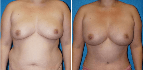 breast augmentation surgery sacramento