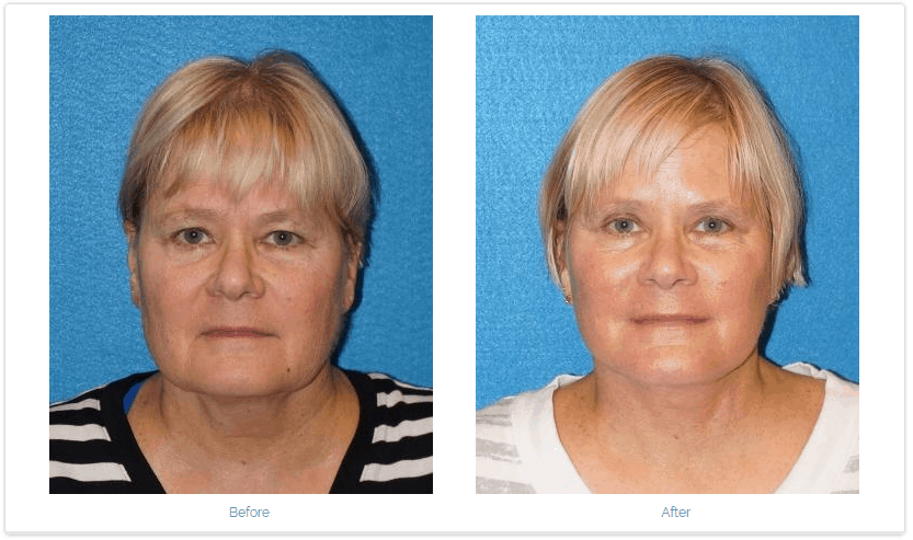 A facelift before and after from Dr. Rudy Coscia.
