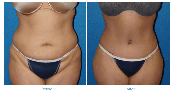 Before and After Photo of Abdominal Surgery