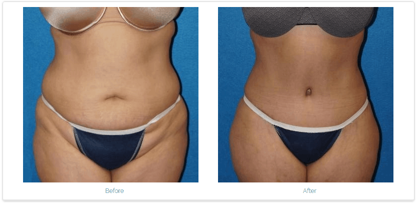 Before and After photos of Tummy Tuck surgery.