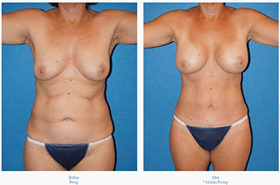 View Dr. Coscia's Mommy Makeover surgery before and after photos.