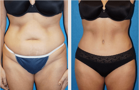 Tummy Tuck Granite Bay