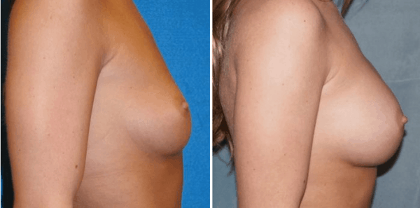Breast Augmentation Sacramento