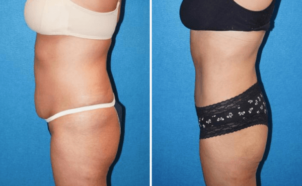 Abdominoplasty Roseville