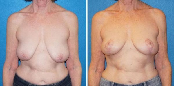 Breast Lift Surgery Sacramento