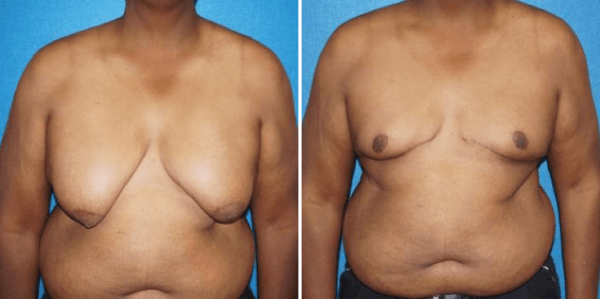 What Is Involved In Male Breast Reduction Sacramento Male