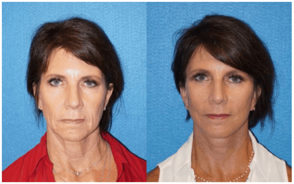 Facelift Patient Photos in Granite Bay