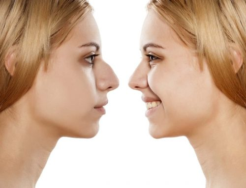 Rhinoplasty Facts That May Surprise You