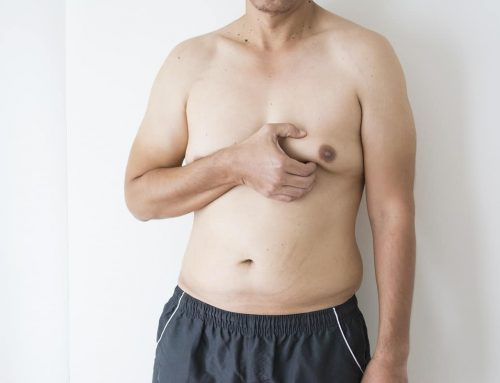 Gynecomastia: How To Achieve a More Masculine Chest