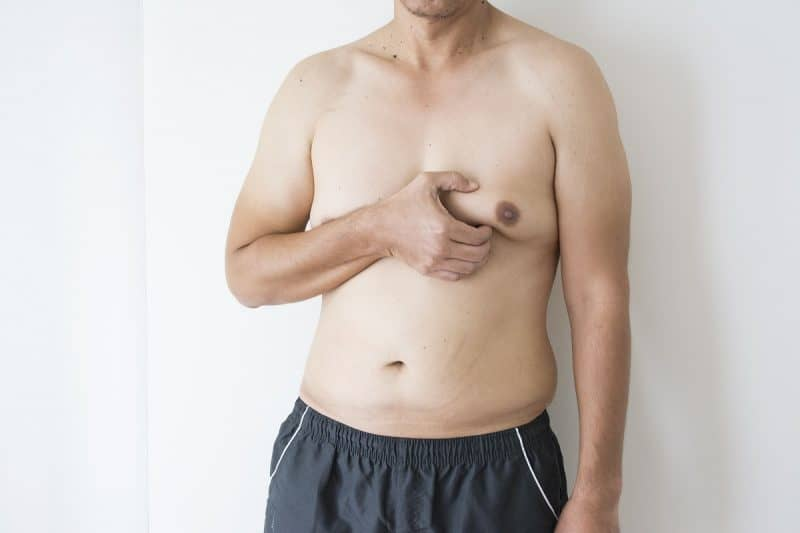 Gynecomastia Surgery in Sacramento & Granite Bay